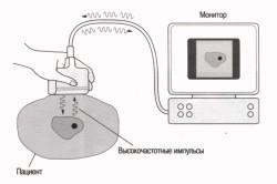 Схема проведения УЗИ