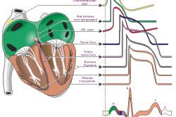 Схема ЭКГ сердца