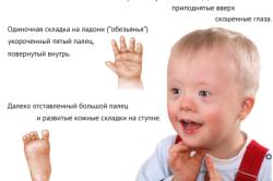 Синдром Дауна - отклонение, которое диагностирует скрининг