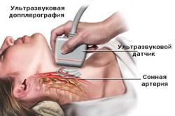 Доплер-УЗИ щитовидной железы