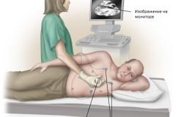Схема проведения УЗИ легких