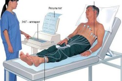 Процедура проведения ЭКГ сердца
