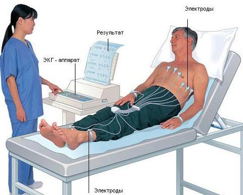 Что лучше сделать кардиограмму сердца или узи
