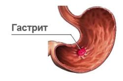 УЗИ кишечника для диагностики гастрита