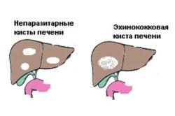 Схема кисты печени