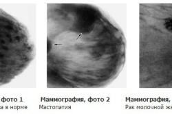 Виды  маммографии