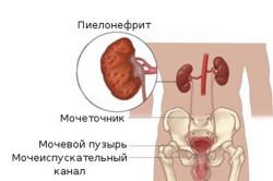 Диагностика пиелонефрита на УЗИ
