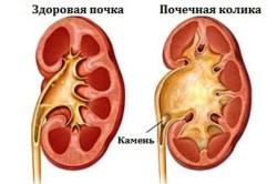 Диагностика почечной колики на УЗИ