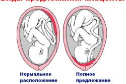 Определение предлежания плаценты на УЗИ