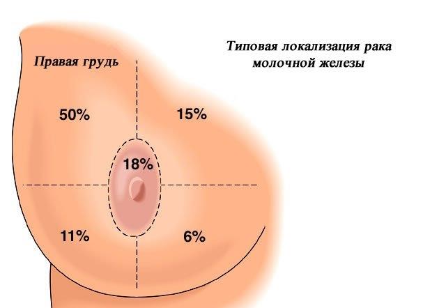 Как можно увеличить грудь кроме имплантов