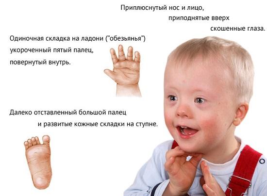 фото синдром дауна на узи