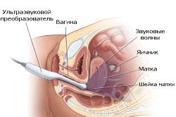 Трансвагинальное УЗИ при беременности на ранних сроках