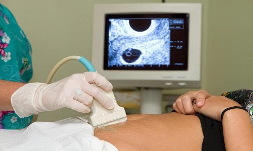 Вред от УЗИ на ранних сроках беременности