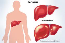 Гепатит - повод для УЗИ