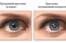 Катаракта - повод для УЗИ глаза