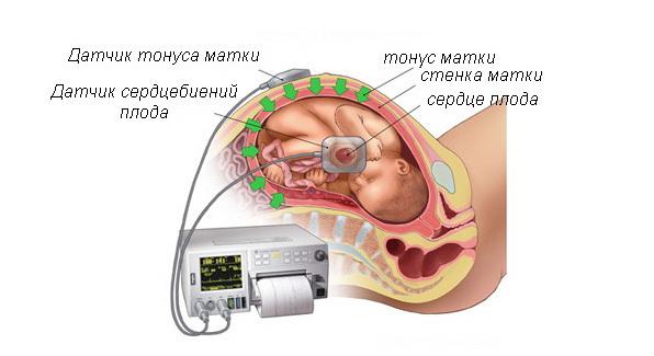 34 неделя беременности вес