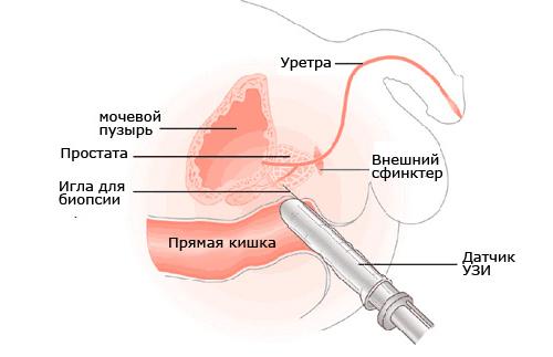 правильный массаж для увеличения груди