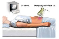 Схема ультразвукового исследования органов малого таза